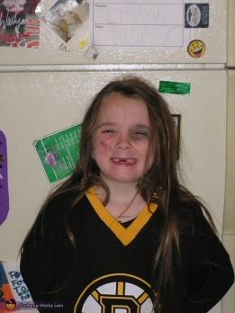 girl with missing teeth.jpg